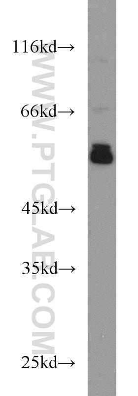 L02 cells were subjected to SDS PAGE followed by western blot with 15967-1-AP(PDIA3 antibody) at dilution of 1:1000  incubated at room temperature for 1.5 hours