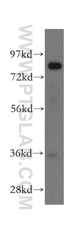 mouse liver tissue were subjected to SDS PAGE followed by western blot with 16332-1-AP(GUSB antibody) at dilution of 1:500  incubated at room temperature for 1.5 hours