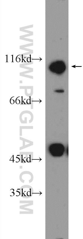 DMSO treated HeLa cells were subjected to SDS PAGE followed by western blot with 16396-1-AP( NRF2, NFE2L2 Antibody) at dilution of 1:600  incubated at room temperature for 1.5 hours