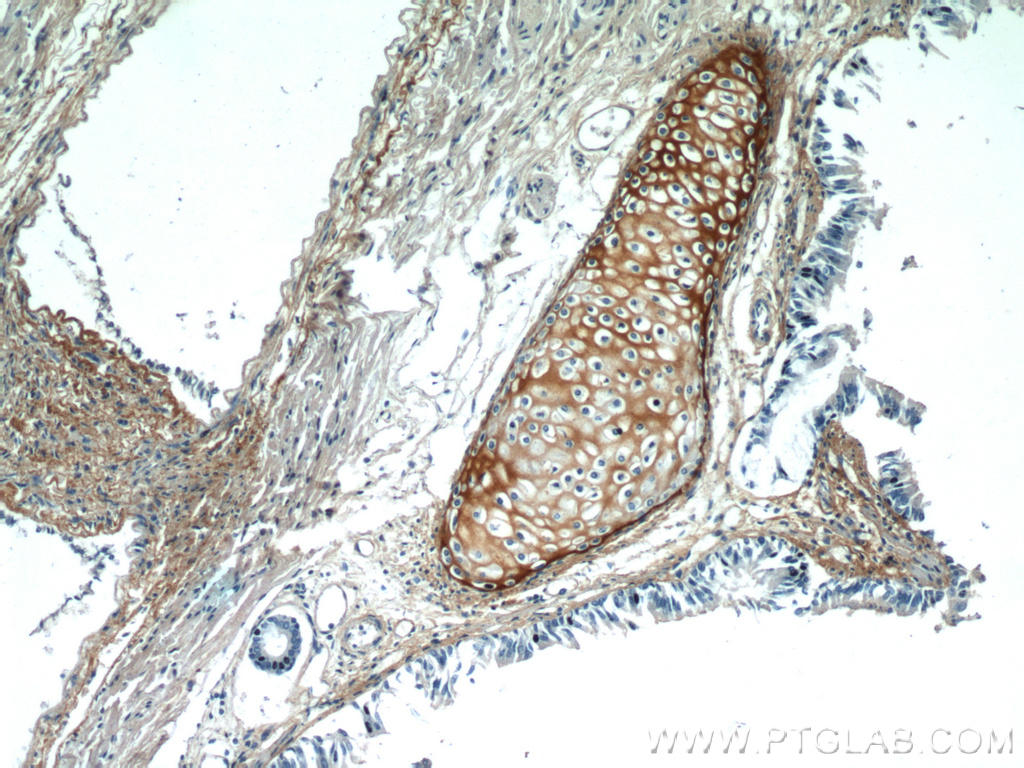 Immunohistochemical of  paraffin-embedded human lung using 16409-1-AP(BGN antibody) at dilution of 1:50 (under 10x lens)