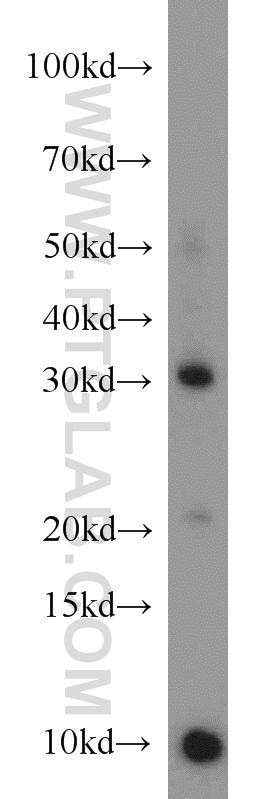 mouse small intestine tissue were subjected to SDS PAGE followed by western blot with 16668-1-AP(CD40LG antibody) at dilution of 1:1000  incubated at room temperature for 1.5 hours