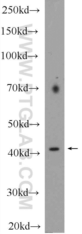 HeLa cells were subjected to SDS PAGE followed by western blot with 16750-1-AP( SPOP Antibody) at dilution of 1:600  incubated at room temperature for 1.5 hours