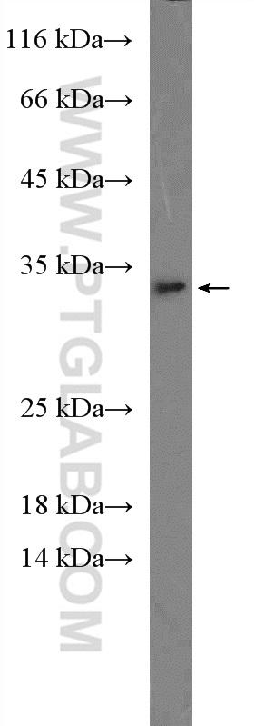 mouse liver tissue were subjected to SDS PAGE followed by western blot with 16765-1-AP( IL1A Antibody) at dilution of 1:600  incubated at room temperature for 1.5 hours