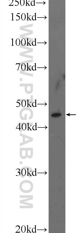 mouse ovary tissue were subjected to SDS PAGE followed by western blot with 17095-1-AP( TMEM5 Antibody) at dilution of 1:300  incubated at room temperature for 1.5 hours