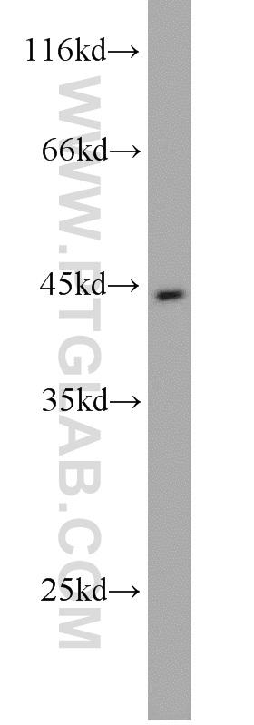 SGC-7901 cells were subjected to SDS PAGE followed by western blot with 17330-1-AP(PGA5 antibody) at dilution of 1:1000  incubated at room temperature for 1.5 hours