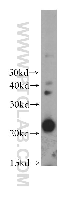 RAW264.7 cells were subjected to SDS PAGE followed by western blot with 17762-1-AP(CSF2 antibody) at dilution of 1:400  incubated at room temperature for 1.5 hours