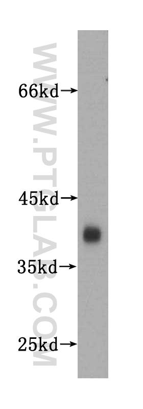 human brain tissue were subjected to SDS PAGE followed by western blot with 17785-1-AP(SYP antibody) at dilution of 1:1500  incubated at room temperature for 1.5 hours