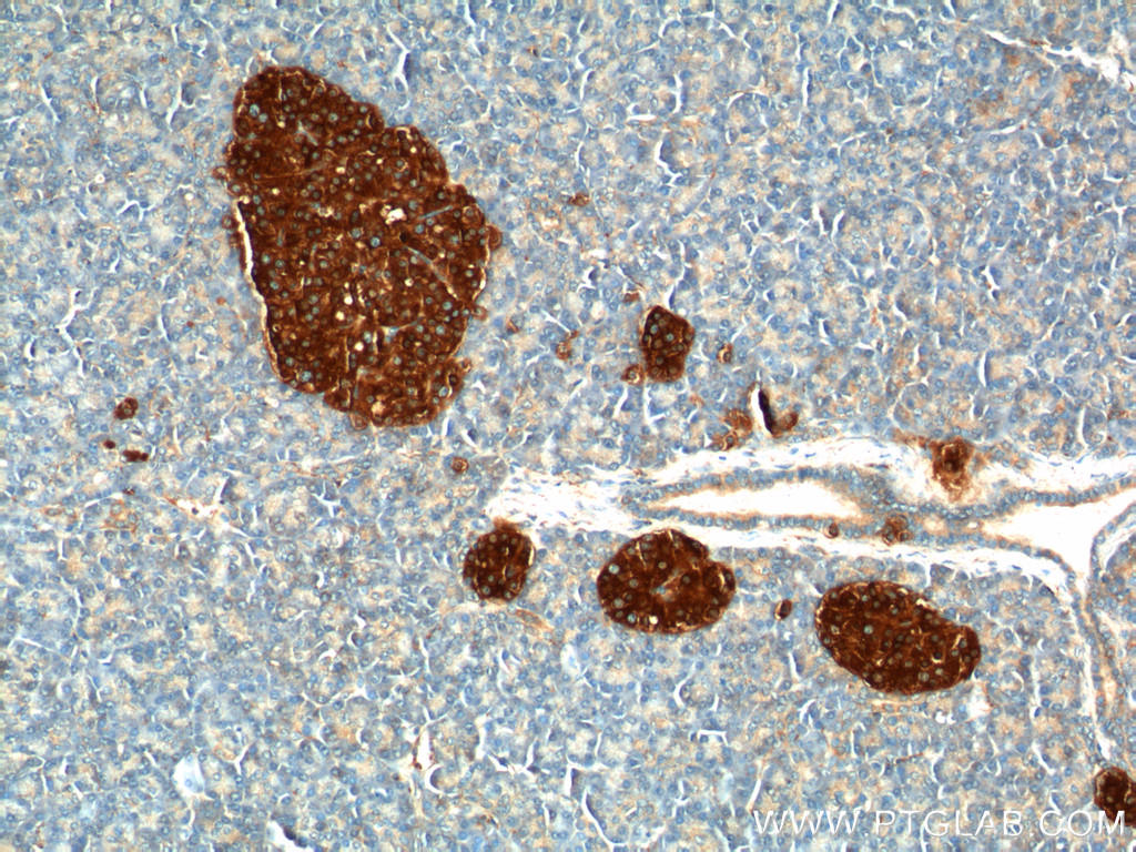 Immunohistochemistry of paraffin-embedded human pancreas tissue slide using 17785-1-AP( Synaptophysin; SYP Antibody) at dilution of 1:200 (under 10x lens).