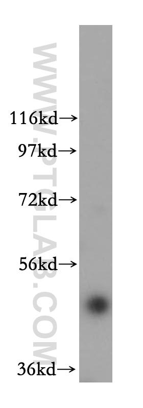 HeLa cells were subjected to SDS PAGE followed by western blot with 17803-1-AP(FBXO3 antibody) at dilution of 1:800  incubated at room temperature for 1.5 hours