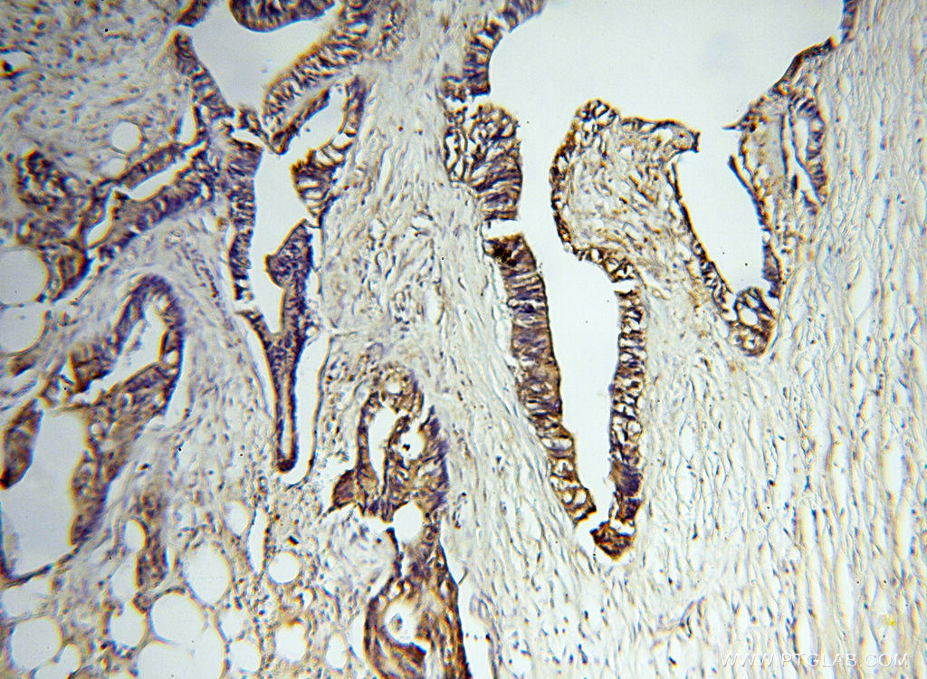 Immunohistochemical of  paraffin-embedded human breast cancer using 17873-1-AP(MMP3 antibody) at dilution of 1:100 (under 10x lens)
