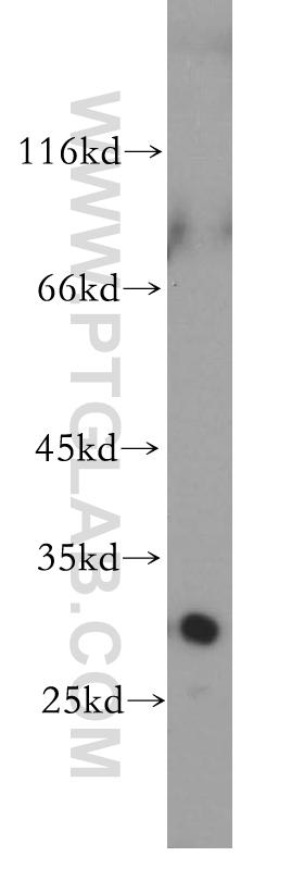 Jurkat cells were subjected to SDS PAGE followed by western blot with 17958-1-AP(LOX antibody) at dilution of 1:600  incubated at room temperature for 1.5 hours