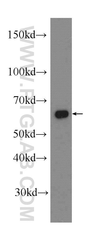 Jurkat cells were subjected to SDS PAGE followed by western blot with 17984-1-AP(AIF antibody) at dilution of 1:2000  incubated at room temperature for 1.5 hours