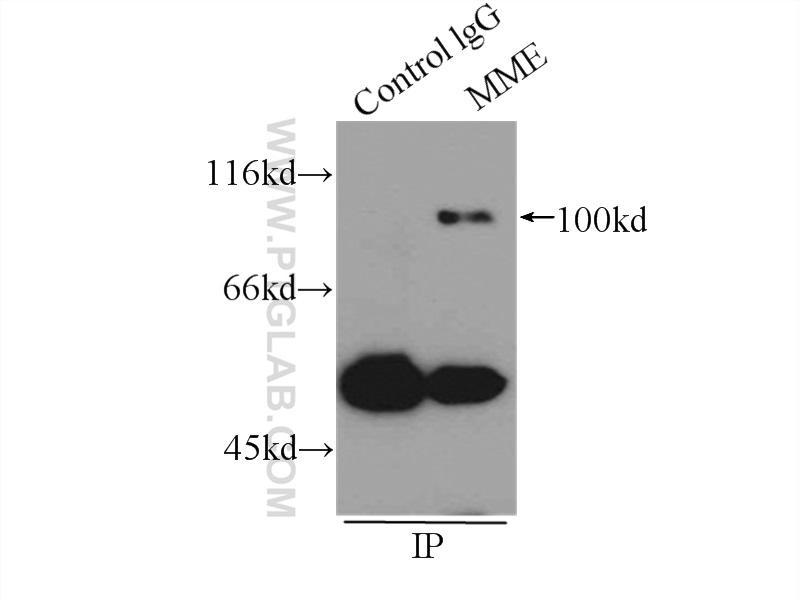 IP Result of anti-MME,CD10 (IP:18008-1-AP, 3ug; Detection:18008-1-AP 1:500) with  Raji cells lysate 2400ug.