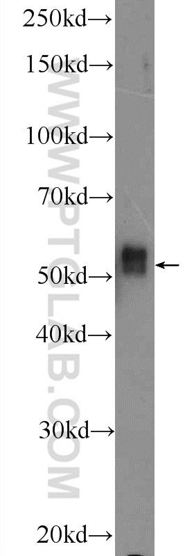 K-562 cells were subjected to SDS PAGE followed by western blot with 18221-1-AP( IRAK4 Antibody) at dilution of 1:300  incubated at room temperature for 1.5 hours
