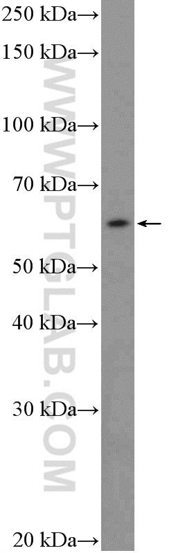 HEK-293 cells were subjected to SDS PAGE followed by western blot with 18321-1-AP( FBXW5 Antibody) at dilution of 1:600  incubated at room temperature for 1.5 hours