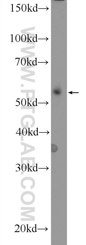 mouse spleen tissue were subjected to SDS PAGE followed by western blot with 18330-1-AP( CD24 Antibody) at dilution of 1:600 incubated at room temperature for 1.5 hours