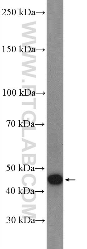 mouse kidney tissue were subjected to SDS PAGE followed by western blot with 18374-1-AP( ANGPTL4 Antibody) at dilution of 1:600  incubated at room temperature for 1.5 hours