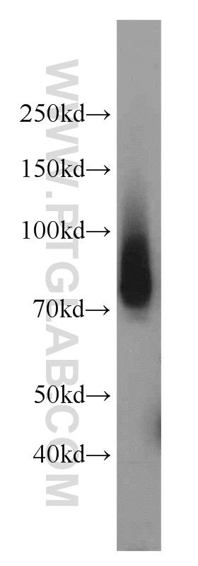 mouse lung tissue were subjected to SDS PAGE followed by western blot with 18410-1-AP(PCDGF,GRN antibody) at dilution of 1:1000  incubated at room temperature for 1.5 hours