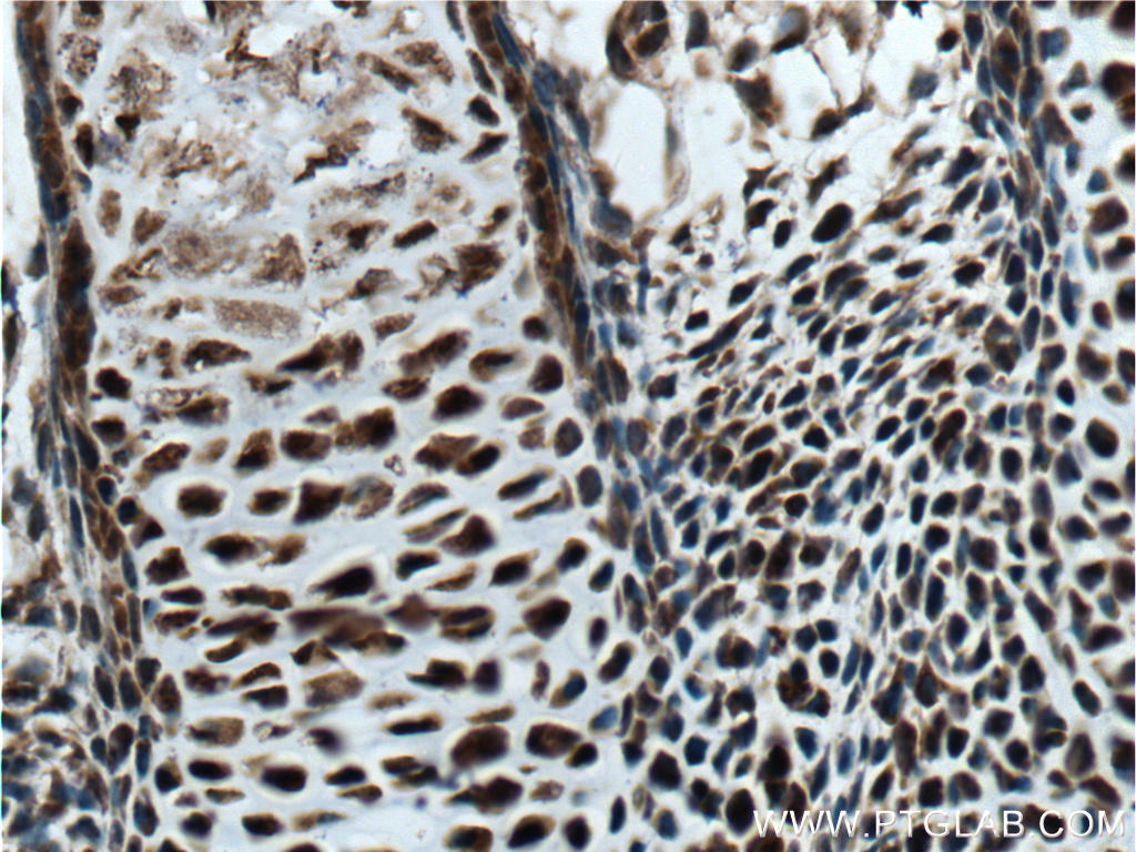 Immunohistochemistry of paraffin-embedded mouse embryo tissue slide using 18943-1-AP( MYOD1 Antibody) at dilution of 1:200 (under 40x lens). heat mediated antigen retrieved with Tris-EDTA buffer(pH9).