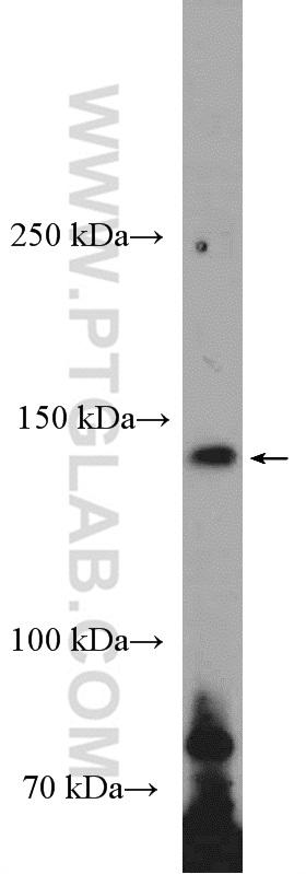 HeLa cells were subjected to SDS PAGE followed by western blot with 18985-1-AP( iNOS Antibody) at dilution of 1:300  incubated at room temperature for 1.5 hours