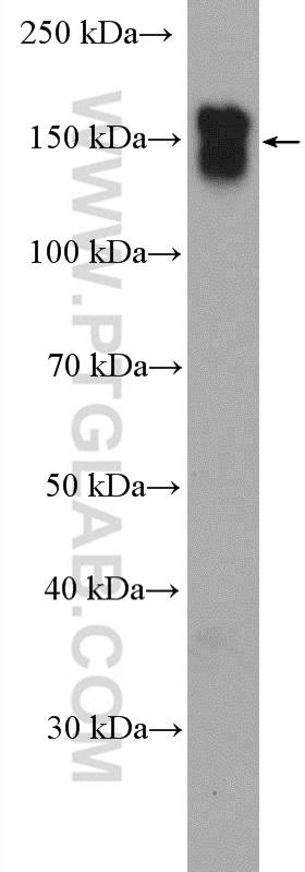 L02 cells were subjected to SDS PAGE followed by western blot with 18986-1-AP (EGFR-Specific antibody) at dilution of 1:2000  incubated at room temperature for 1.5 hours