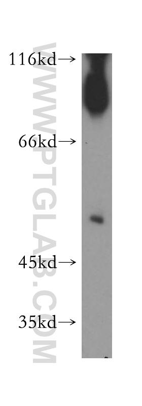 human heart tissue were subjected to SDS PAGE followed by western blot with 19050-1-AP(SGMS1 antibody) at dilution of 1:300  incubated at room temperature for 1.5 hours