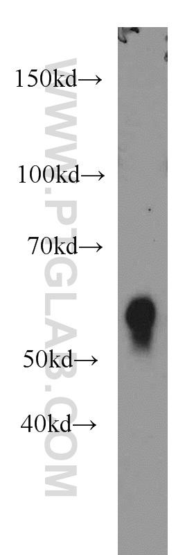 mouse thymus tissue were subjected to SDS PAGE followed by western blot with 19068-1-AP(CD4 antibody) at dilution of 1:1000  incubated at room temperature for 1.5 hours