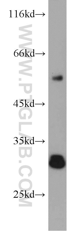 mouse liver tissue were subjected to SDS PAGE followed by western blot with 19522-1-AP(AFMID antibody) at dilution of 1:500  incubated at room temperature for 1.5 hours