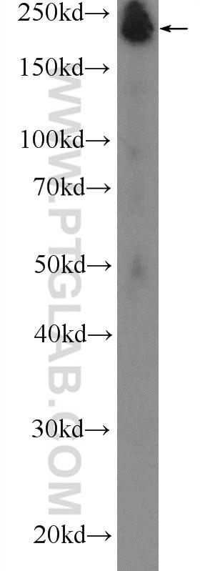 human skeletal muscle tissue were subjected to SDS PAGE followed by western blot with 20140-1-AP( MYH4-Specific Antibody) at dilution of 1:300  incubated at room temperature for 1.5 hours