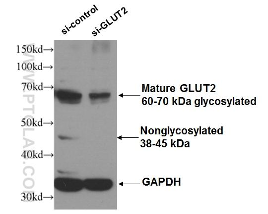WB result of GLUT2 antibody (20436-1-AP, 1:300) with si-Control and si-GLUT2 transfected HEK 293 cells