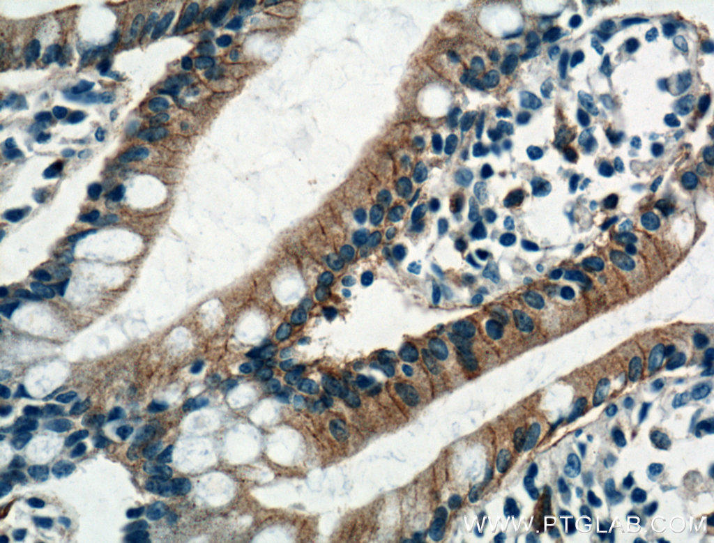 Immunohistochemistry of paraffin-embedded human small intestine tissue slide using 20436-1-AP( SLC2A2 Antibody) at dilution of 1:500 (under 40x lens).
