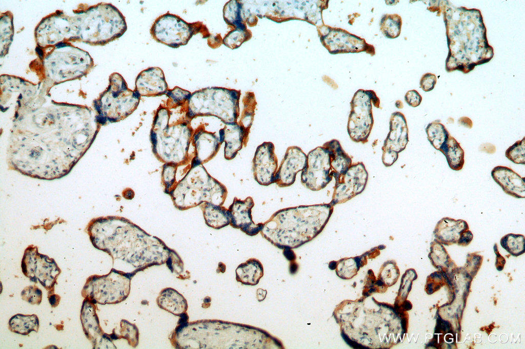 Immunohistochemical of  paraffin-embedded human placenta using 20459-1-AP(SLC39A8 antibody) at dilution of 1:100 (under 10x lens)