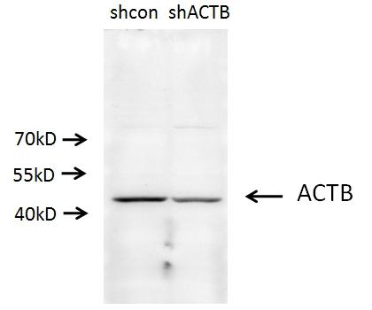 A549 cells (shcontrol and shRNA of Beta actin) were subjected to SDS PAGE followed by western blot with 20536-1-AP(ACTB antibody) at dilution of 1:500. (Data provided by Angran Biotech (www.miRNAlab.com)).
