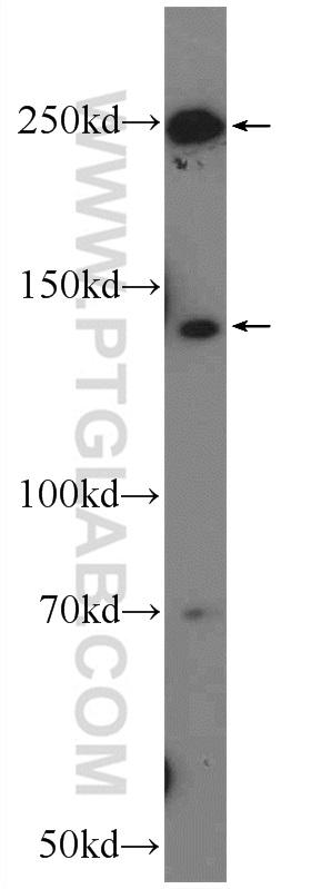 mouse liver tissue were subjected to SDS PAGE followed by western blot with 20578-1-AP( APOB Antibody) at dilution of 1:600  incubated at room temperature for 1.5 hours