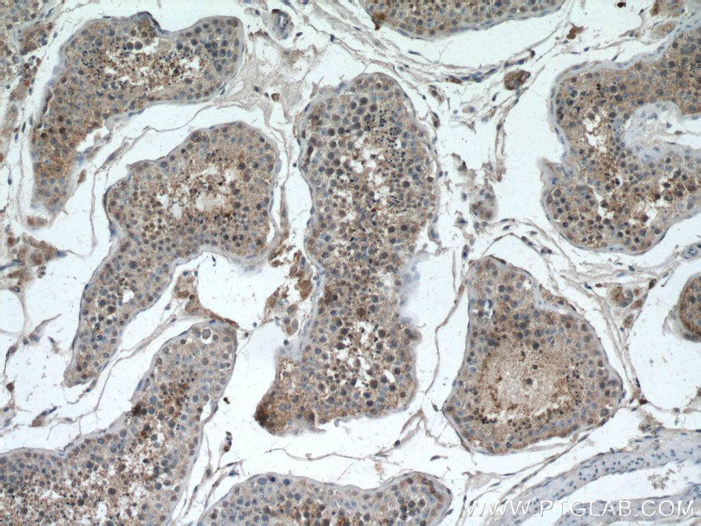 Immunohistochemistry of paraffin-embedded human testis tissue slide using 20869-1-AP (RHBDD1 antibody) at dilution of 1:100 (under 10x lens) heat mediated antigen retrieved with Tris-EDTA buffer(pH9).