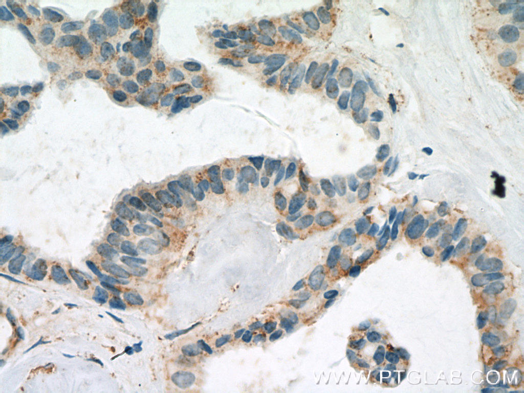 Immunohistochemistry of paraffin-embedded human breast cancer tissue slide using 20895-1-AP( FBXL15 Antibody) at dilution of 1:200 (under 40x lens). heat mediated antigen retrieved with Tris-EDTA buffer(pH9).