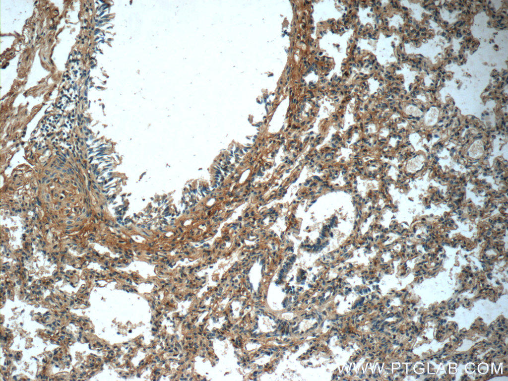 Immunohistochemistry of paraffin-embedded human lung tissue slide using 20921-1-AP( PTAFR Antibody) at dilution of 1:50 (under 10x lens)