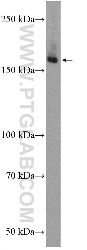 rat skeletal muscle tissue were subjected to SDS PAGE followed by western blot with 20986-1-AP( ULK1 Antibody) at dilution of 1:300  incubated at room temperature for 1.5 hours