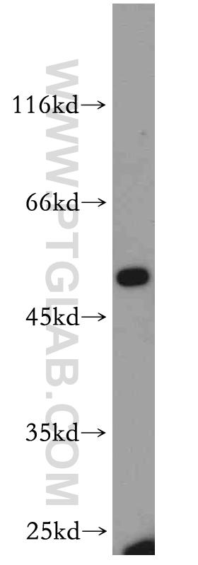 A431 cells were subjected to SDS PAGE followed by western blot with 21050-1-AP(EPCAM antibody) at dilution of 1:200  incubated at room temperature for 1.5 hours