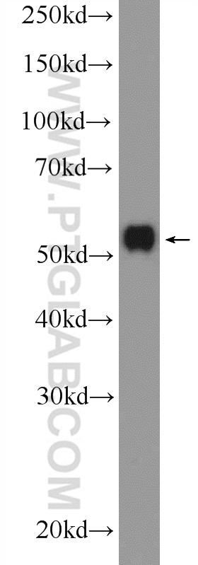 HepG2 cells were subjected to SDS PAGE followed by western blot with 21066-1-AP( MLKL Antibody) at dilution of 1:1000  incubated at room temperature for 1.5 hours