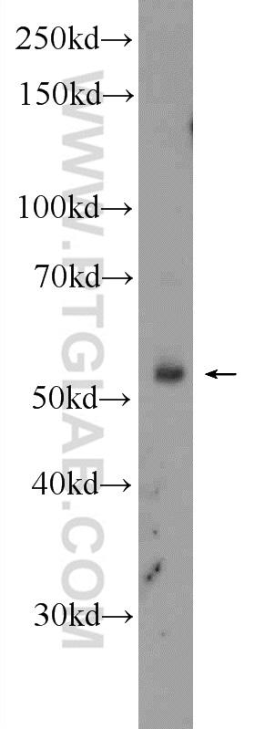 K-562 cells were subjected to SDS PAGE followed by western blot with 21687-1-AP( FBXW12 Antibody) at dilution of 1:300  incubated at room temperature for 1.5 hours