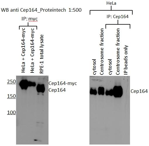 WB results of CEP164 (22227-1-AP, 1:500) with RPE1 cells by Laboratory of Protein Dynamics and Signaling; Center for Cancer Research, National Cancer Institute.