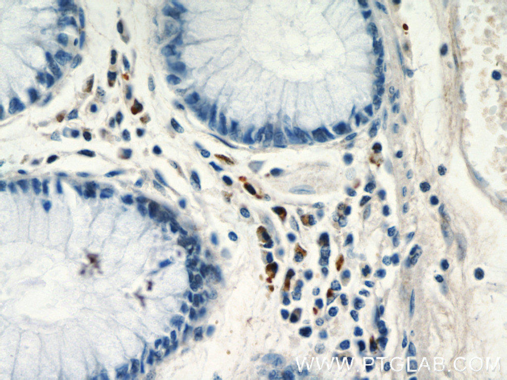 Immunohistochemistry of paraffin-embedded human colon tissue slide using 22342-1-AP( CCL17 Antibody) at dilution of 1:50 (under 40x lens)