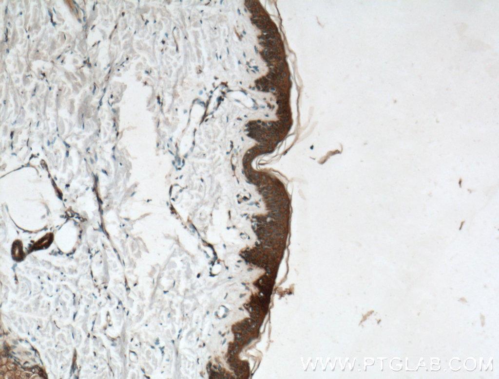 Immunohistochemistry of paraffin-embedded human skin tissue slide using 22686-1-AP( TRPV1 Antibody) at dilution of 1:200 (under 10x lens).