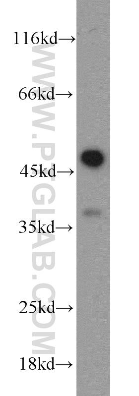 Jurkat cells were subjected to SDS PAGE followed by western blot with 22915-1-AP(CASP1 antibody) at dilution of 1:1000  incubated at room temperature for 1.5 hours