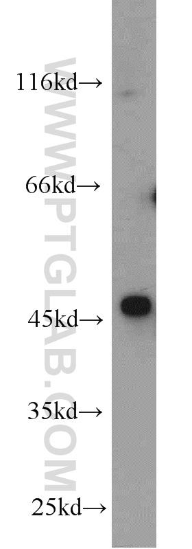Jurkat cells were subjected to SDS PAGE followed by western blot with 23045-1-AP(OXTR antibody) at dilution of 1:1000  incubated at room temperature for 1.5 hours