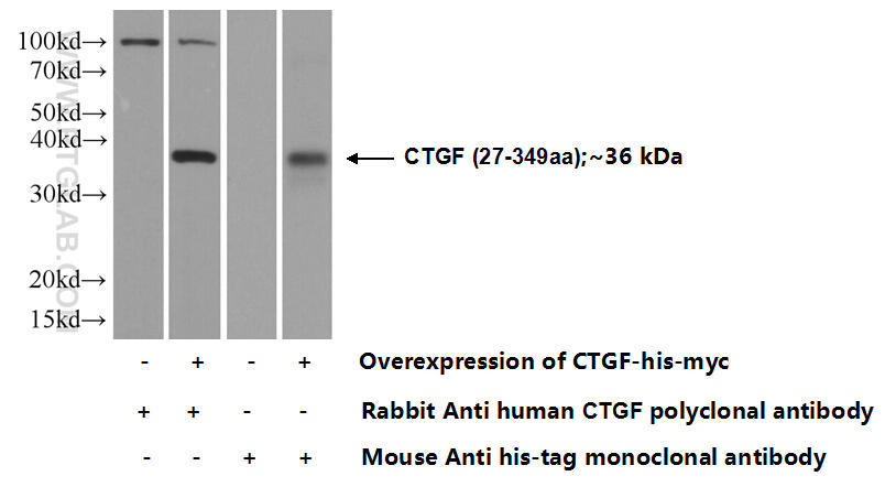Transfected HEK-293 cells were subjected to SDS PAGE followed by western blot with 23936-1-AP( CTGF Antibody) at dilution of 1:1000  incubated at room temperature for 1.5 hours