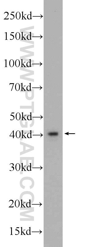 HeLa cells were subjected to SDS PAGE followed by western blot with 24282-1-AP( FBXO28 Antibody) at dilution of 1:1000  incubated at room temperature for 1.5 hours