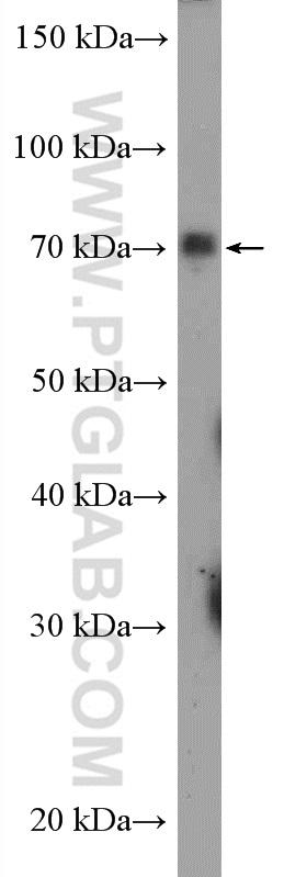 A549 cells were subjected to SDS PAGE followed by western blot with 24654-1-AP( SLC5A2 Antibody) at dilution of 1:600  incubated at room temperature for 1.5 hours
