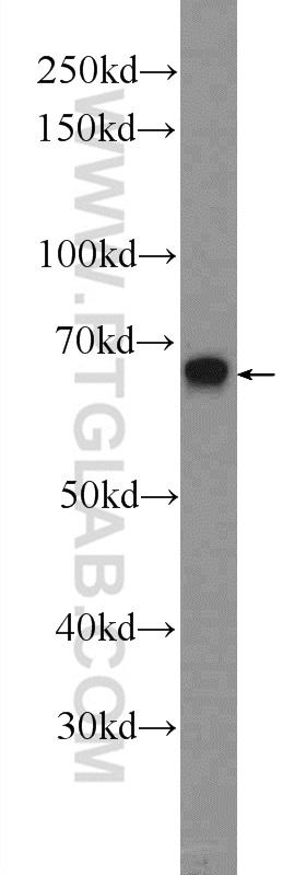 Raji cells were subjected to SDS PAGE followed by western blot with 25009-1-AP( ZC3H12A Antibody) at dilution of 1:300  incubated at room temperature for 1.5 hours